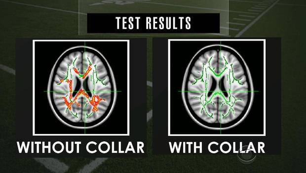 MRI scan showing fewer concussions